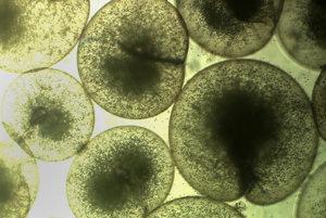 Druh moreskej riasy noctiluca scintillans zväčšený 50-krát.