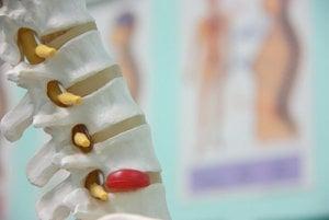 Vyskočená platnička. Vzniká v dôsledku krútenia alebo dvíhania, sa jedna z platničiek v chrbtici pretrhne a unikne z nej gélová tekutina.Prejavuje sa ako náhla a silná bolesť v dolnej časti chrbta. Vyskočená platnička môže spôsobiť aj bolesť nôh.