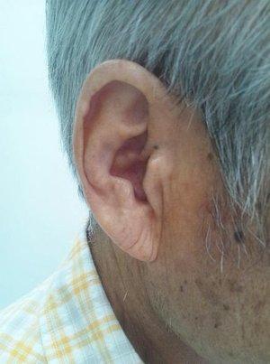 Ryhy na ušiach japonského pacienta s angínou.
