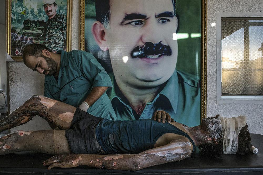Lekár ošetruje popáleniny bojovníka Islamského štátu v sýrskej Hasake (Prvá cena, všeobecné správy) Mauricio Lima/World Press Photo