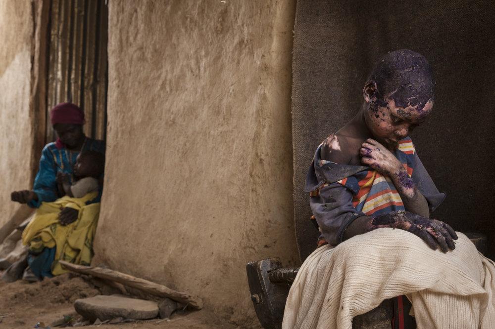 Sedemročný Adam Abdel utrpel vážne popáleniny potom, ako na jeho dom v sudánskom Dárfúre spadla bomba. (druhá cena/súčasné probĺémy) Adriane Ohanesian, World Press Photo.