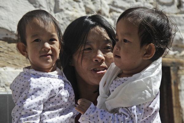Siamské dvojčatá sú v náručí svojej matky pred budhistickým chrámom v bhutánskom Thimphu 7. marca 2019.