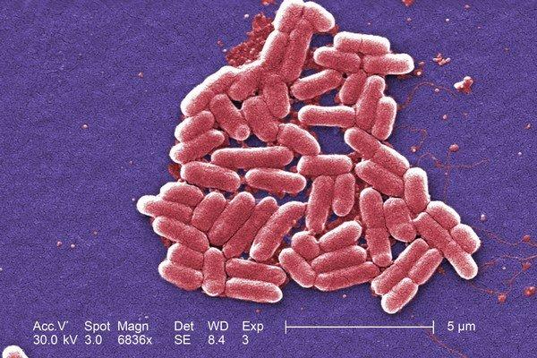 Užitočné baktérie E.coli môžu čistiť odpad.
