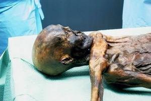 Ötzi pri výskume.