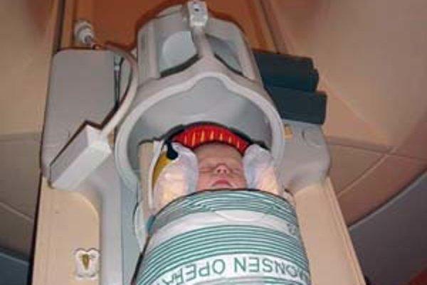 Jeden zo skúmaných novorodencov pred skenovaním mozgu.