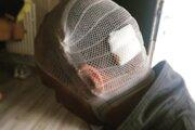 Muž z Humenného napadol manželov v ich dome v Tušiciach, spôsobil im zranenia na hlave.