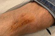 Vodič mercedesu má poranenú aj nohu.