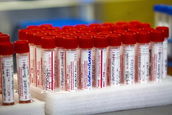 Odberové vzorky, ktoré čakajú na testovanie na koronavírus.