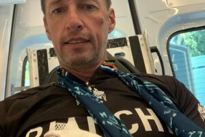 Milan Majerský utrpel na bicykli úraz ruky.