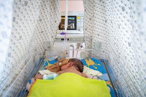 Predčasne narodené dieťa v nemocnici na Antolskej v Bratislave.
