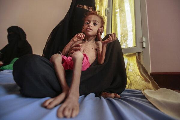 Žena drží podvyživeného chlapca v zdravotnom stredisku Aslam v jemenskom meste Hajjahu.