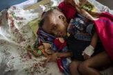 Sever Etiópie sužuje hladomor, kríza je vážna