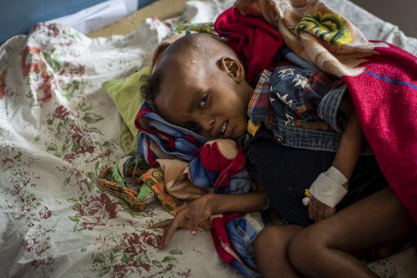 V Tigraji podľa OSN hladuje 350-tisíc ľudí.