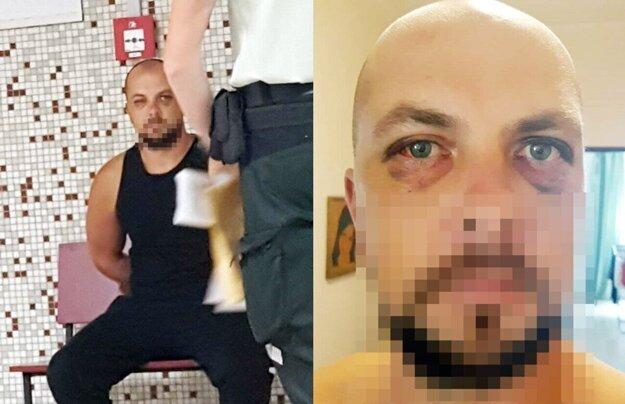 Róbert na súde v júli 2019 a jeho zranenia na tvári.