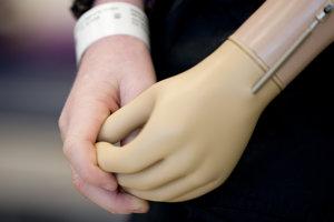 Protetická protéza