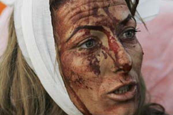 Zranená Izraelčanka v meste Sderot, ktoré militanti ostreľujú zvnútra pásma Gazy.