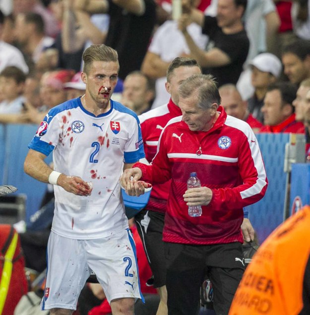 Peter Pekarík bol po zásahu súpera zakrvavený.