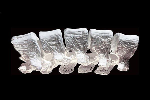 Implantáty idú vďaka 3D tlačiarňam vytvarovať do ľubovoľného tvaru.