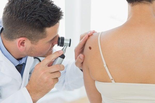 Každý podozrivý útvar na pokožke by mal na odporúčanie všeobecného lekára skontrolovať dermatovenerológ.