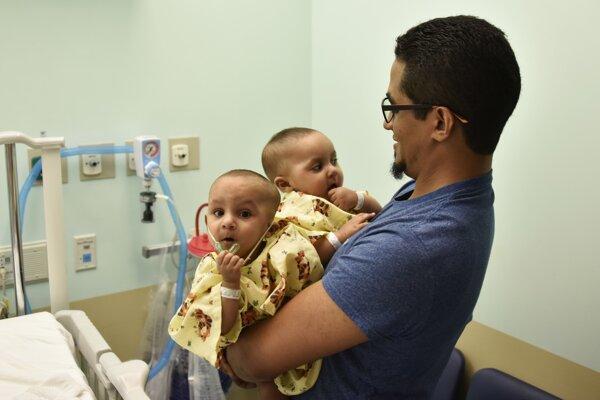 Americkým lekárom sa podarilo oddeliť siamské dvojčatá.