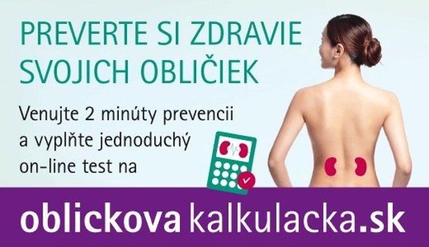 oblickovakalkulacka.sk