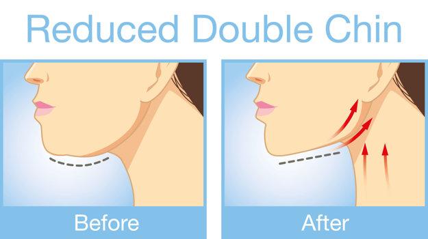 Ak vás trápi dvojitá brada, správnymi cvikmi a profesionálnou masážou dokážete hotové zázraky.