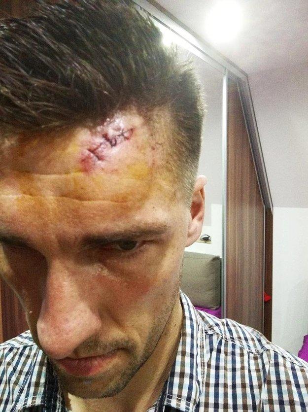 Brankár Bábu Jaroslav Psota nedohral zápas vIvanke. Po strete sdomácim útočníkom ho brala sanitka, čelo mu zašívali tromi stehmi.