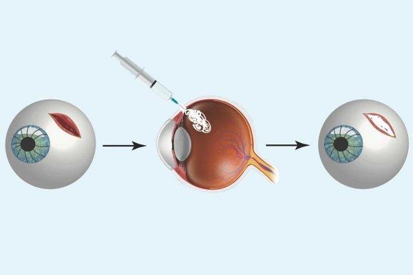 Dočasná gélová výplň môže zranemému zachrániť zrak.
