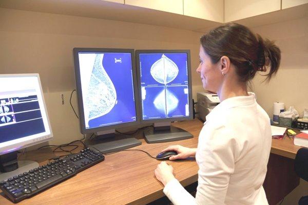 Rakovina prsníkov u žien patrí aj v Martine k veľmi často diagnostikovaným.