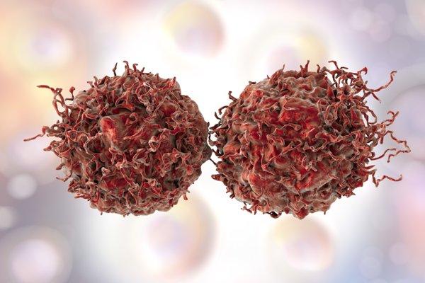Nádorové bunky.