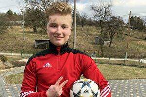 Súčasná podoba futbalistu Martina Murcka. Autonehoda mu zanechala estetickú ujmu na pravej strane hlavy.