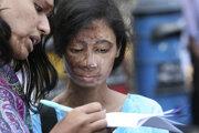 Bangladéšske ženy, ktoré prežili útok kyselinou.