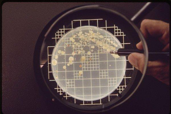 V boji s baktériami sme možno dostali novú zbraň, látku teixobactín.