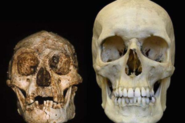 Porovnanie lebky homo sapiens (vpravo) a homo floresiensis.