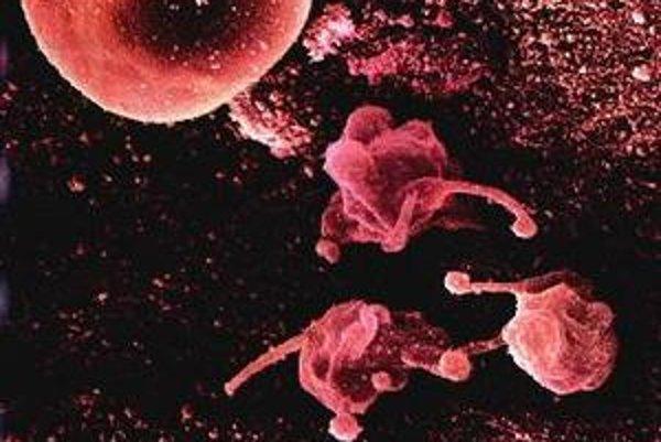 Mycoplasma pneumoniae.