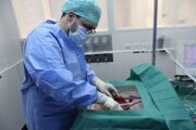 Chirurg pripája pečeň darcu na umelo vytvorený obeh, ktorý dokáže napodobniť telesné funkcie.