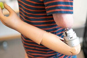 Pokroková protéza pacientom umožňuje pocítiť, že držia predmet, a tiež  regulovať silu svojho stisku.