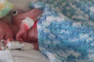 Chlapček vážil pri narodení 840 gramov, lekári okamžite začali bojovať o jeho život.