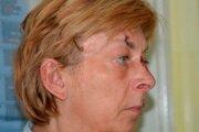 Na fotografii, ktorú zverejnila chorvátska polícia, mala na tvári viacero škrabancov.