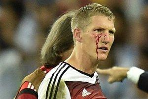 Zakrvavená tvár Bastiana Schweinsteigera.