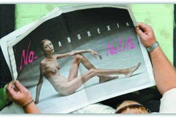 Kampaň Oliviera Toscaniho upozorňujúca na anorexiu. Tento rok bude Toscani vystavovať na Slovensku.
