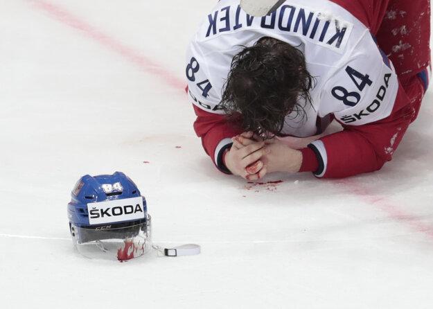 Na zápas len tak nezabudne Tomáš Kundrátek, ktorý skončil krvavý na ľade.