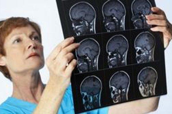 Pri určení správnej diagnózy pomôže vyšetrenie EEG.
