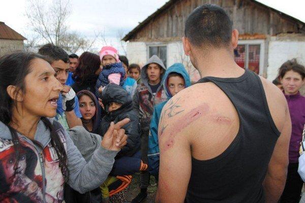 Jeden z údajne zbitých mužov ukazuje svoje rany.