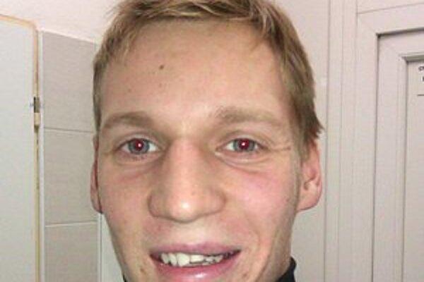 Dávid Džerenga prišiel o časť zubov.