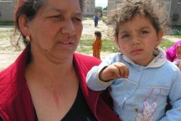Obeťami zúrivej bitky boli aj ženy sa deti.