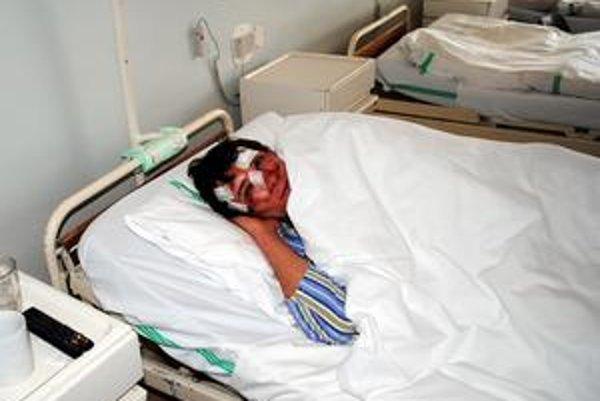 Štefan skončil s tržnými ranami na tvári. Pomliaždeniny mal na kolenách, nohách a bruchu.