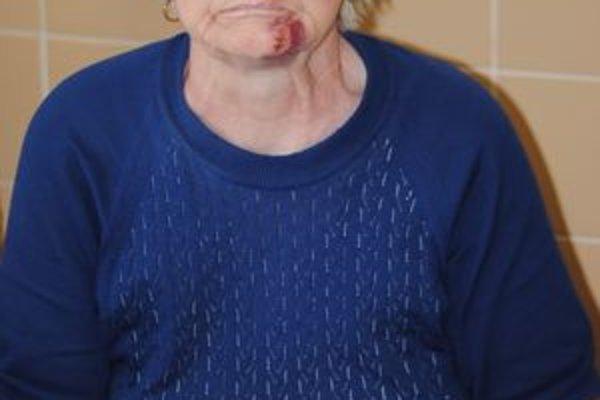 Doráňaná babička. Zo zranení sa bude Matilda Lapková liečiť minimálne týždeň.