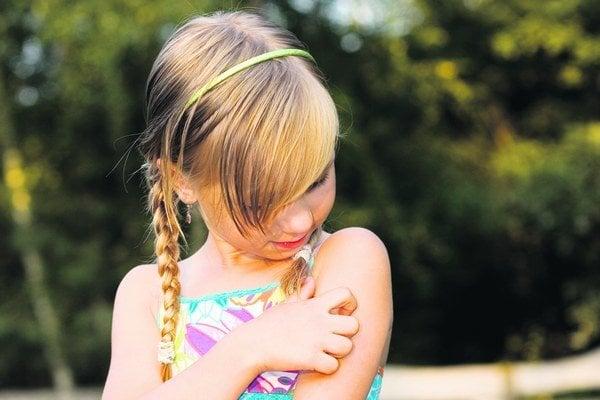 Pri nezávažných reakciách stačí siahnuť po géloch zmierňujúcich bolesť a opuch.