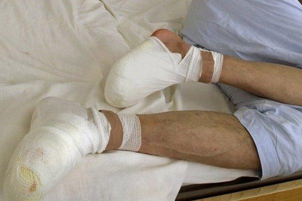 Lekári museli pri liečbe omrzlín pristúpiť aj k amputácii.
